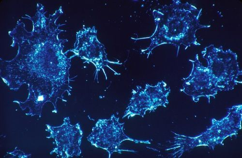 cancer-cells-541954__340